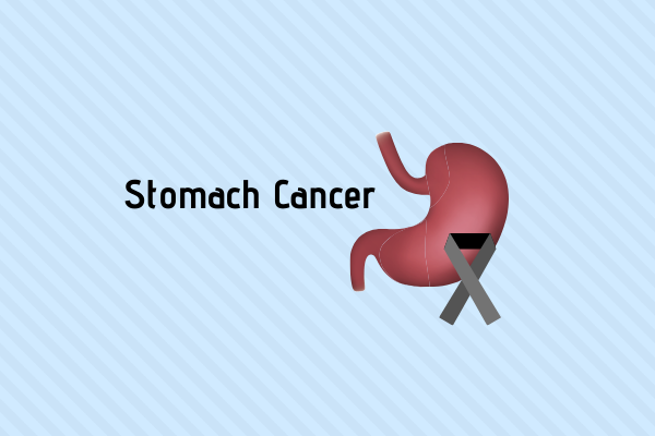 Stomach cancer is caused due to developement of abnormal cells in stomach that multiply at an exponential rate.