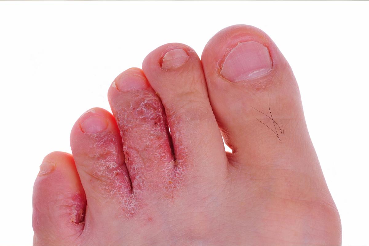 Athlete's Foot: A Fungal Skin Disease
