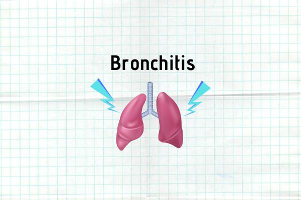 Bronchitis: Causes, Symptoms, Prevention & Treatment