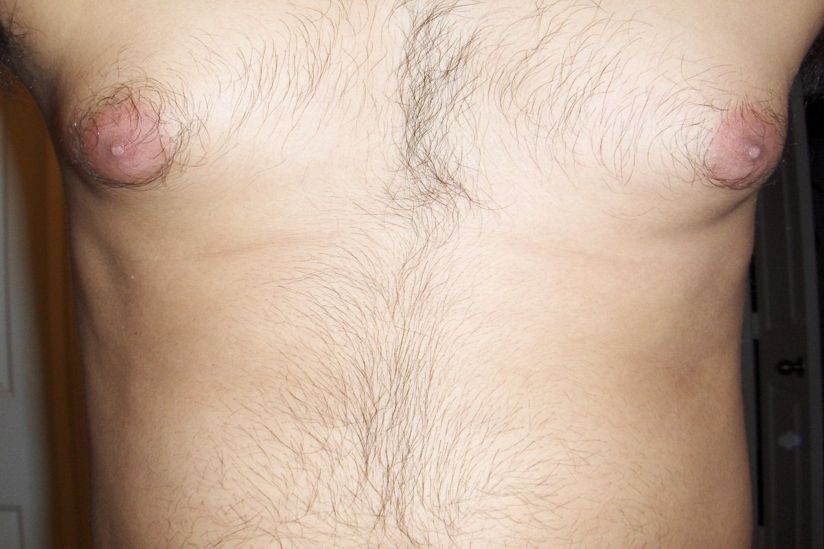 Gynecomastia- Breast Issues In Men Are For Real