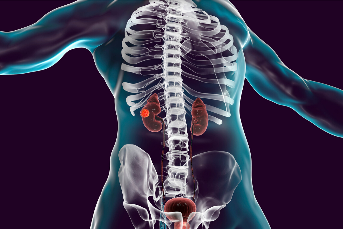 What Do You Need To Know About Renal Cancer?