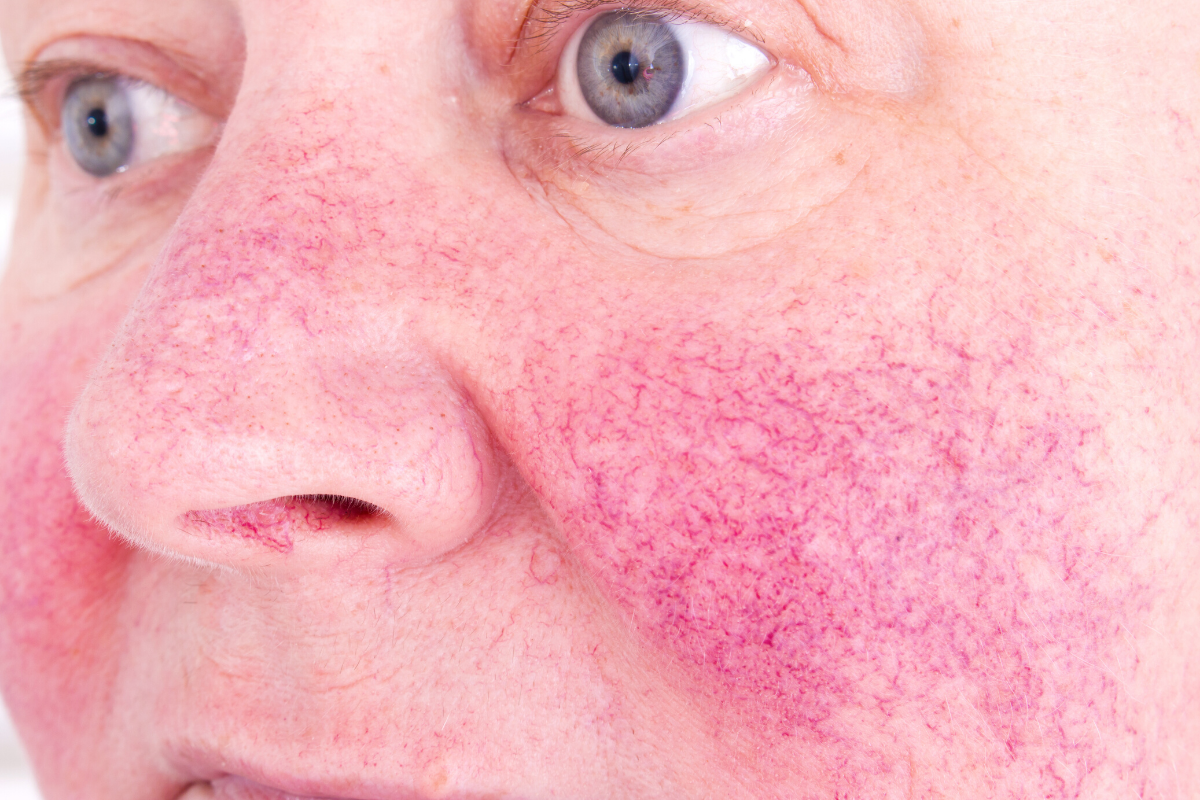 Rosacea: Types, Symptoms And Causes