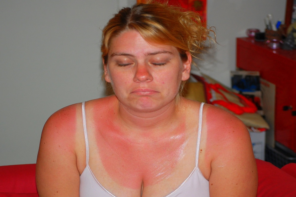 How Does One Treat A Sunburn?