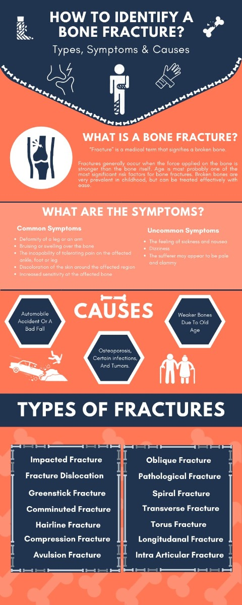 All you need to know about bone fractures