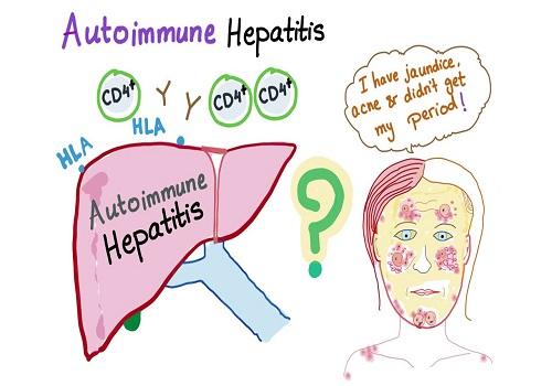 Understanding The Complications Of Autoimmune Hepatitis
