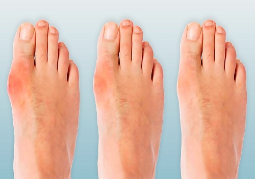 All You Need To Know About The Bunions