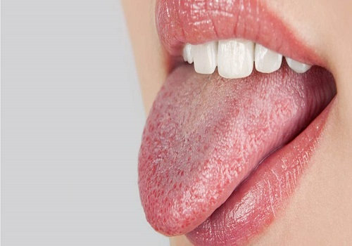 Dry Mouth And Its Possible Causes