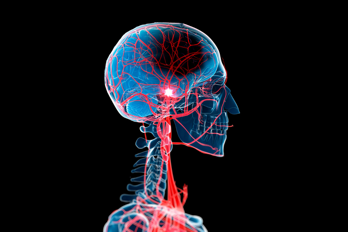 Everything You Need To Know About Stroke!