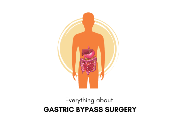 Struggling With Obesity? Know About A Weight Loss Surgery: Gastric Bypass