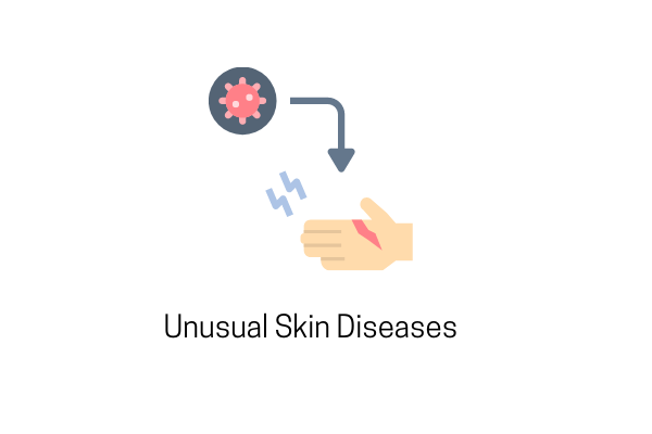 6 Unusual Skin Diseases That You Should Know About