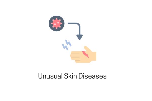 unusual skin diseases