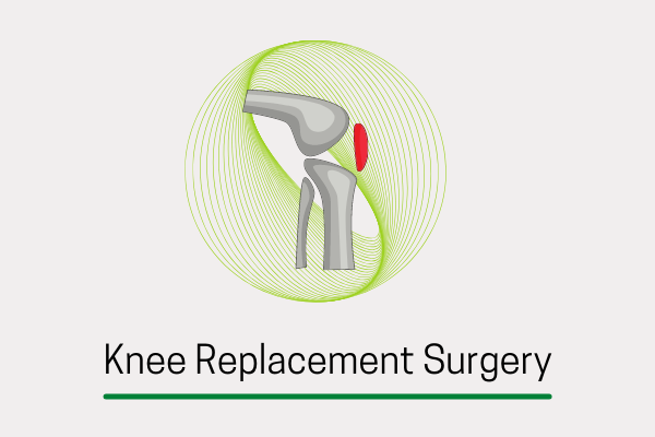 Knee Arthroplasty- A Comprehensive Guide On Knee Replacement Surgery