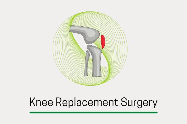 knee anthroplasty