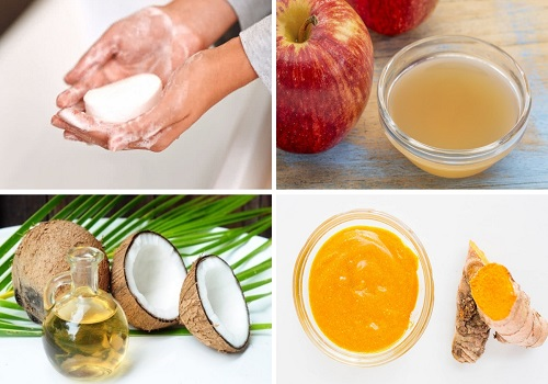 The Best Natural Remedies to treat Ringworm of the Scalp!