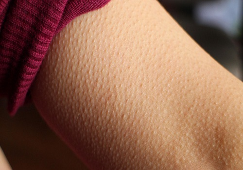 Know the reason behind Goosebumps?