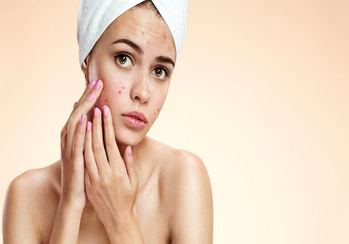 Ever Wondered Why are Acne Caused?
