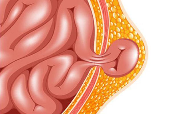 hernia symptoms