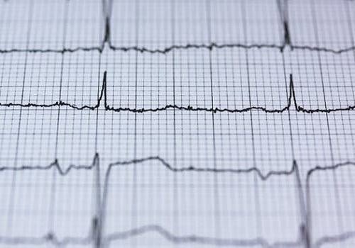 Know About 'Silent Heart Attack'