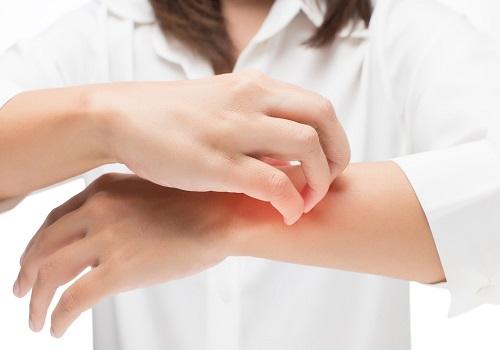 combating mosquito bites
