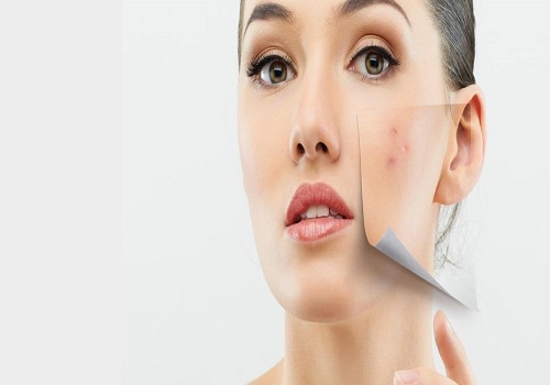 KNOW ABOUT THE MENSTRUATION RELATED PIMPLES