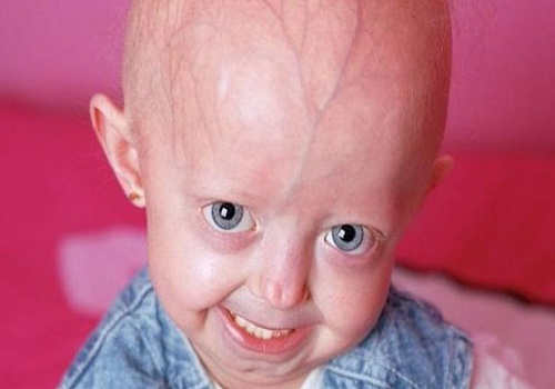 How Progeria makes you race against time