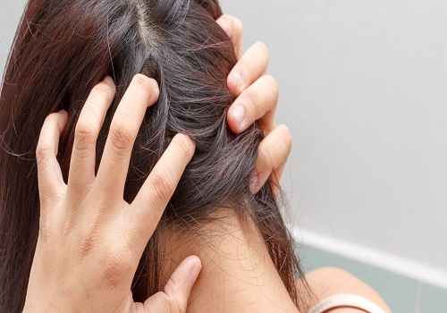 Disorders That Are Associated With The Scalp