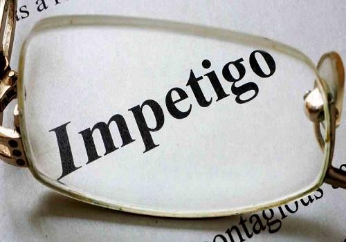 Treating Impetigo at Home