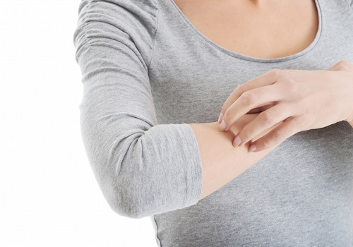 Triggers of Hives and their Control