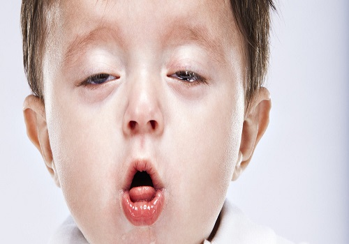 The Recurrent Case of Whooping Cough